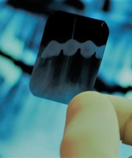 esztetikai-fogaszat-szeged-kicsi