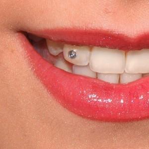 magán fogorvos szeged 7